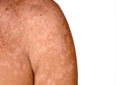 Μυκητίαση Δέρματος